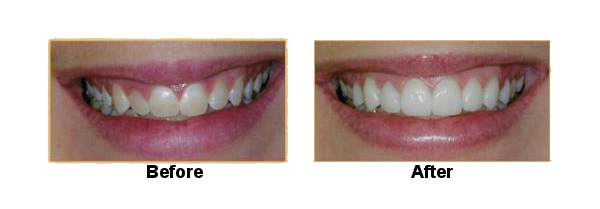 gum-recontouring-and-veneers