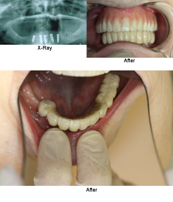 implants-permanent-teeth-smile-gallery-1