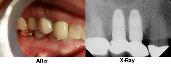 permanent-porcelain-crowns-case-1