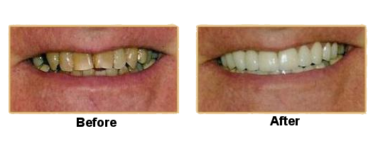porcelain-restorations-case-1