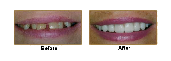 Cosmetic Dentistry in Holt, MI | Dr  Edward Liu General