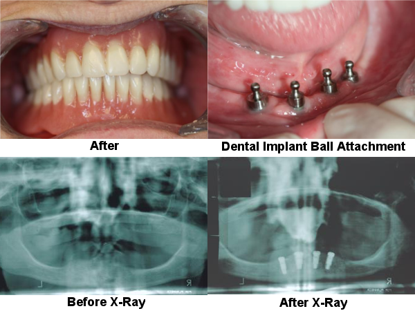 removable-dentures-2