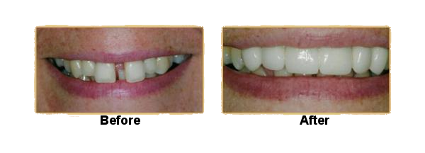 teeth-extraction-and-porcelain-crowns