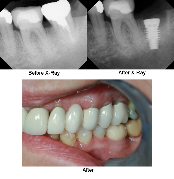 underside-denture-with-single-crown-case-2