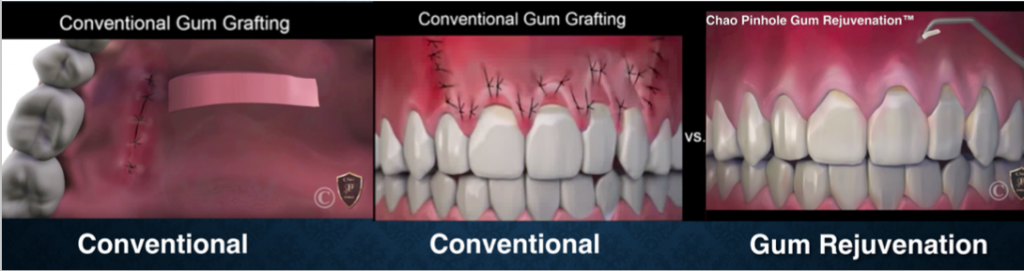 Pinhole Gum Grafting Holt Mi Ed Liu General And Implant Dentistry