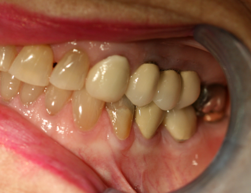 permanent-teeth1